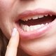 Medication and how to treat canker sores at home