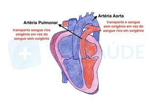 4. Artérias trocadas