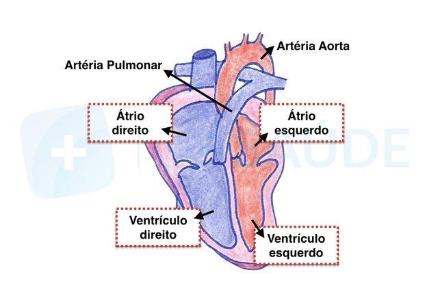 Taquicardia ventricular: o que é, sintomas, causas e tratamento