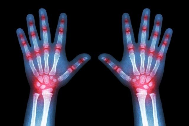 Artrite reativa: o que é, sintomas e causas