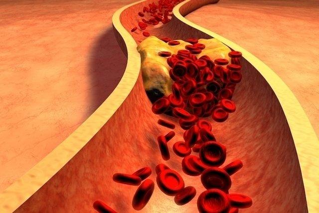 O que é colesterol VLDL e o que significa quando está alto