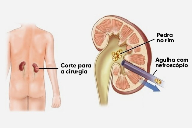 Tipos de cirurgia de Pedra nos Rins e como é a recuperação