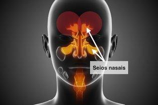 Dor na testa pode ser sintoma de sinusite