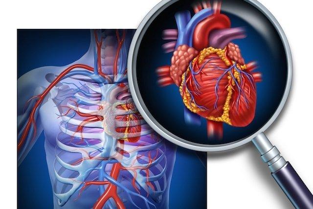 O que são Doenças cardiovasculares e principais tipos