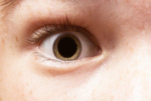 Pupilas dilatadas: 7 principais causas e quando é grave