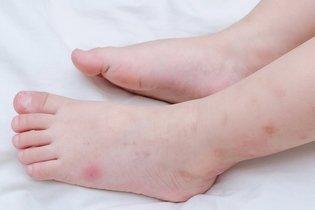Picada de inseto: sintomas e que pomadas usar