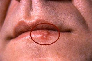 Foto do 2º dia com herpes