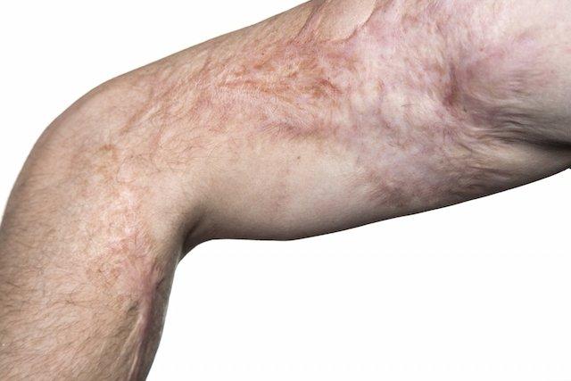 Como Tratar A Cicatriz De Queimadura Tua Saude