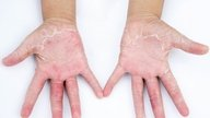 Symptoms and treatment for hand allergies