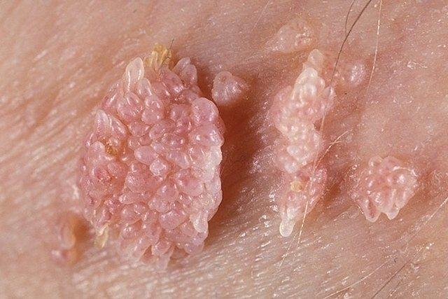 Vph en hombres ano, Virus papiloma humano hombres ano - Hpv en hombres ano