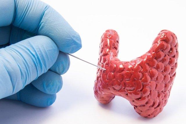 Punção de tireoide: Para que serve e Como entender o Resultado