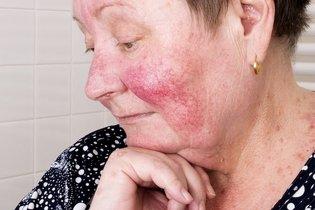 O que é Rosácea, sintomas, tipos, causas e tratamento