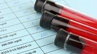 Sintomas e Tratamento para Potássio alto no sangue
