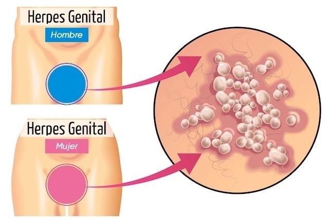 Cómo se transmite el herpes genital