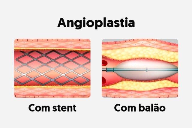 O que é a Angioplastia e como é feita