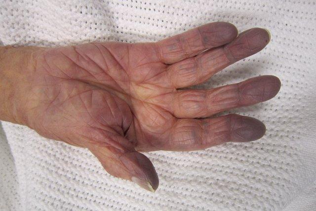 Cianose: o que é, principais causas e como é feito o tratamento