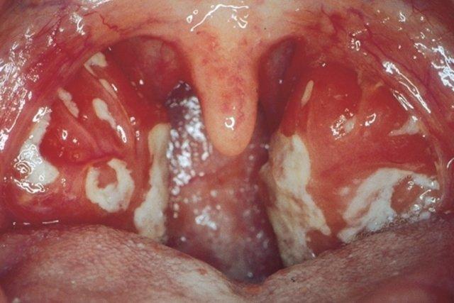 Resultado de imagem para mononucleose infecciosa