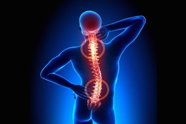 Remédios para dor na coluna