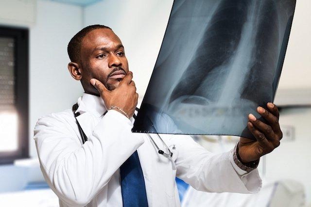 Novo medicamento 4x1 facilita o tratamento da Tuberculose