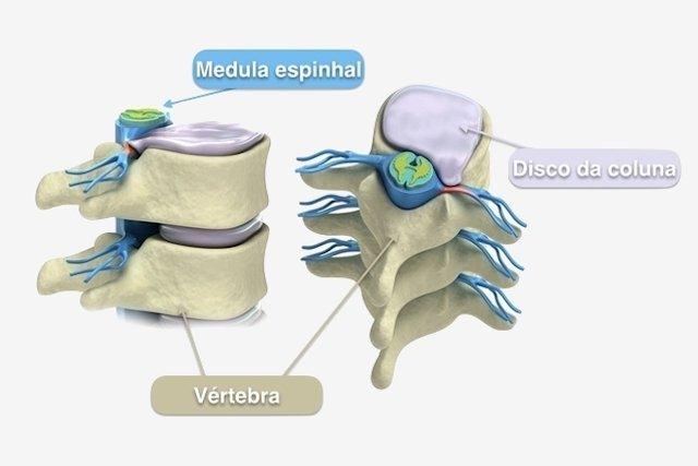 Tratamento para fratura na coluna