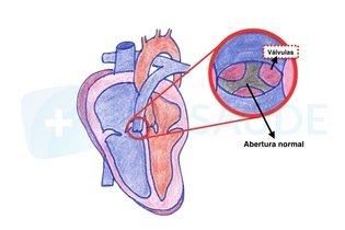 Abertura normal da artéria