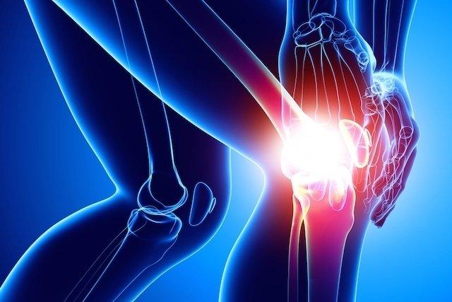 O que é bursite no joelho e como tratar