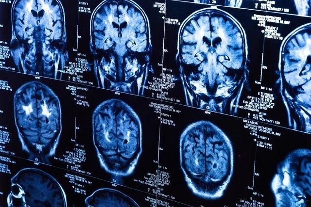 Cisto colóide: o que é, principais sintomas e como é feito o tratamento