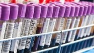 Cuáles son los análisis de sangre que detectan cáncer