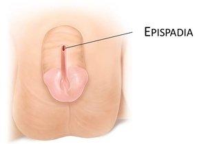 Epispádia