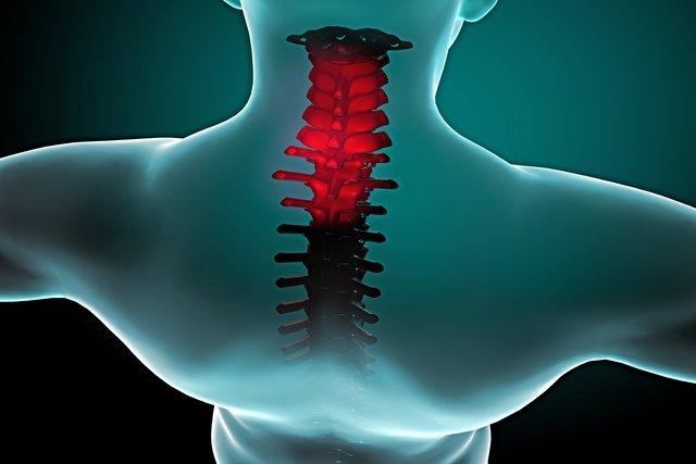 Veja os cuidados que deve ter após uma cirurgia na coluna
