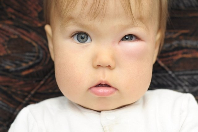 Celulite no olho: Remédio e risco de contágio