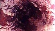Candidiasis intestinal: qué es, causas y tratamiento