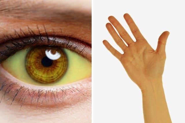 O que podem ser os olhos amarelados
