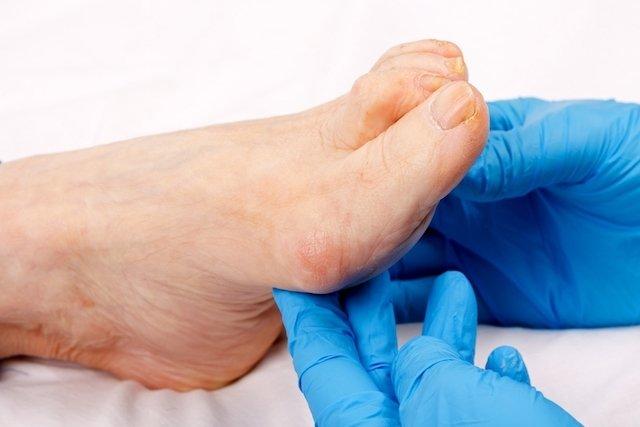 como obter inchaço nas pernas e tornozelos