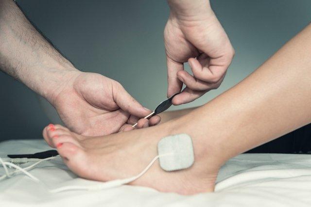 Exame de Eletroneuromiografia: o que é, para que serve e como é feito