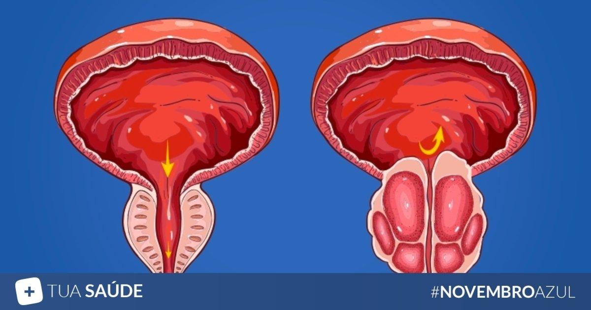 la prostatitis provoca un agrandamiento de la próstata