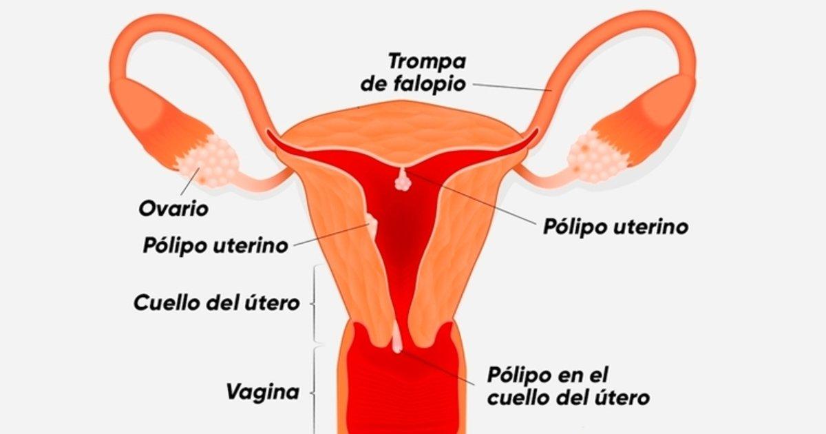 dolor pélvico y pólipo endometriales