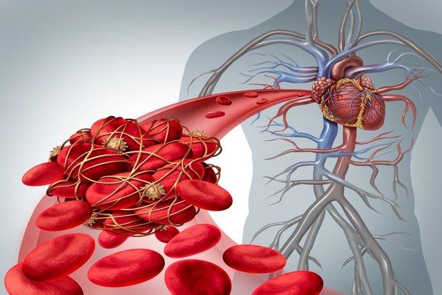 Sangue grosso: o que é, sintomas e como é o tratamento