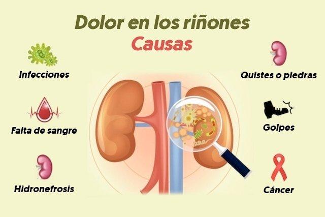 Principales causas y tratamientos para el dolor en los riñones