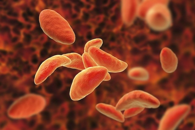 Toxoplasmose: o que é e como tratar