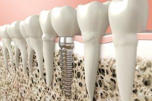 Quando colocar um implante dentário e quanto custa