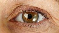 Gusanos en los ojos (Loa Loa): Principales síntomas y tratamiento