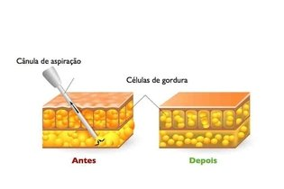 Aspirar gordura