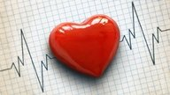Valores normales para el colesterol total, HDL y LDL