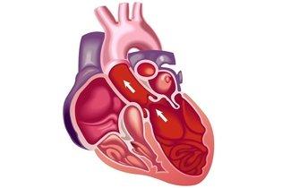 Coração dilatado