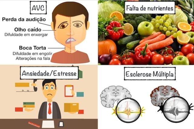12 causas de Formigamento no corpo