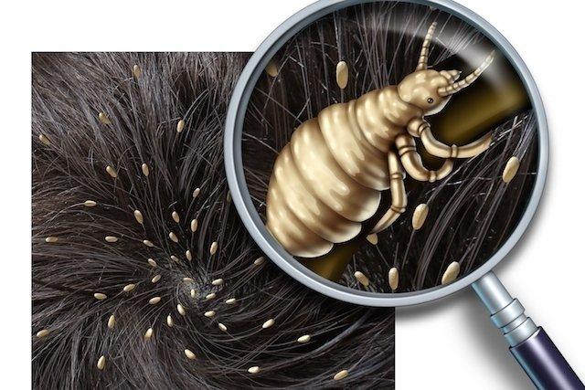 O que pode ser a coceira no couro cabeludo e o que fazer