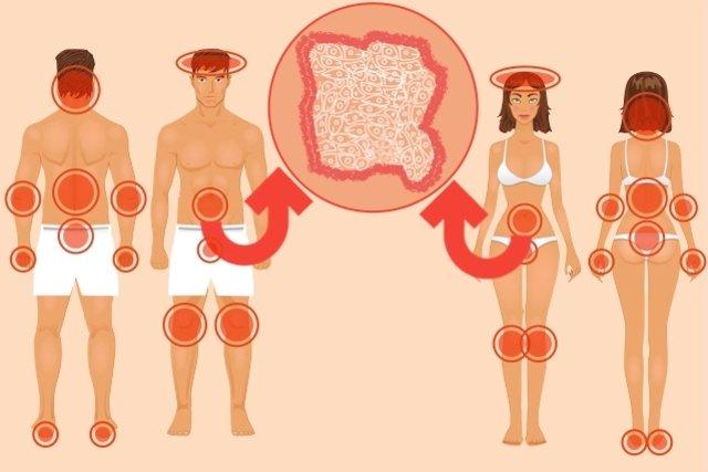 sintomas na pele da psoríase
