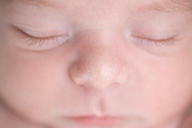 Problemas de pele mais comuns no bebê