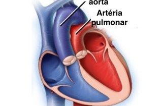 Coração antes da cirurgia